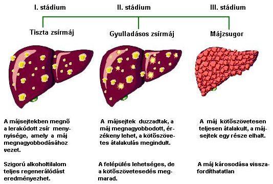 epehólyagrák 3. stádium enterobiosis vételi technika