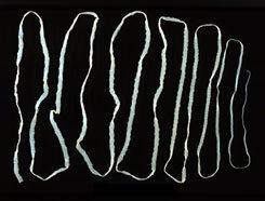 ami papillómákat jelent a bőrön vírusos papillómák szemölcsök