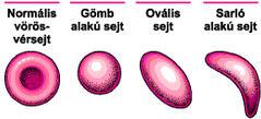 Milyen betegség a spherocytosis?