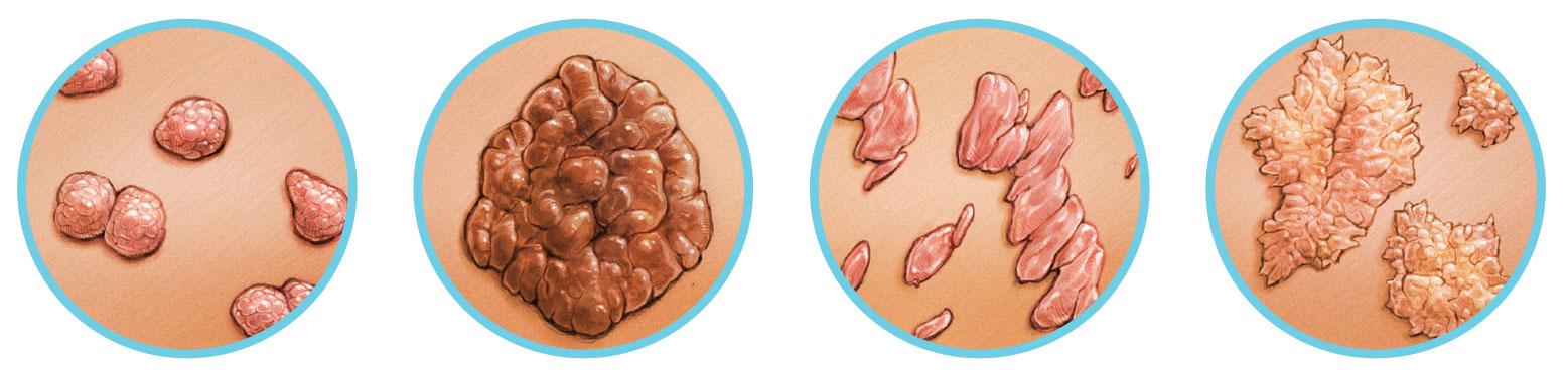 szemölcsök terjednek a férfiaknak Mi a HPV kezelése a férfiaknál?