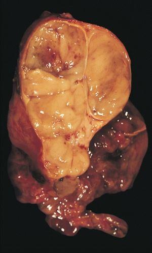 szerezz papok féregét a pinworm féreg gyógyszeres kezelése