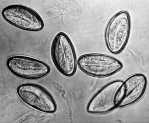kör és pinworms kezelés felnőtteknél ha a pinworm a hüvelybe kerül