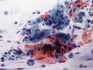 hpv vírus és életbiztosítás