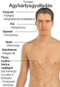helmint fertőzés felülvizsgálata