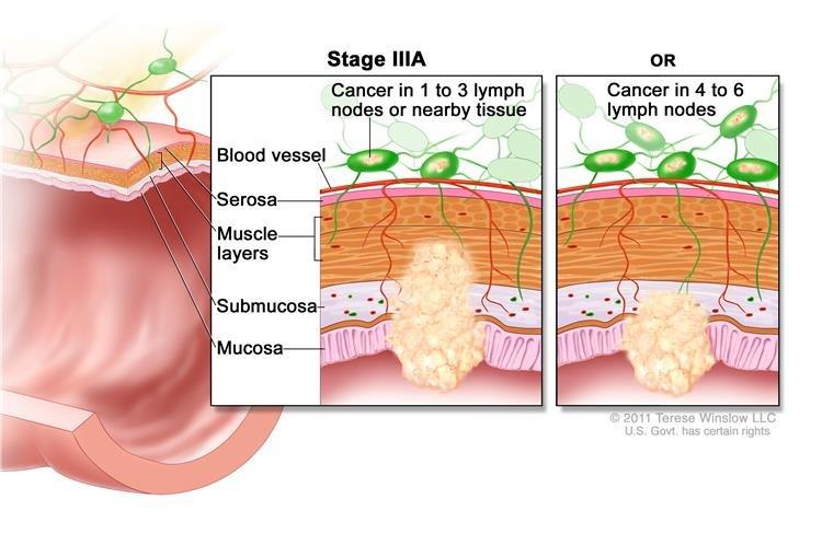 Rákos rák műtéte