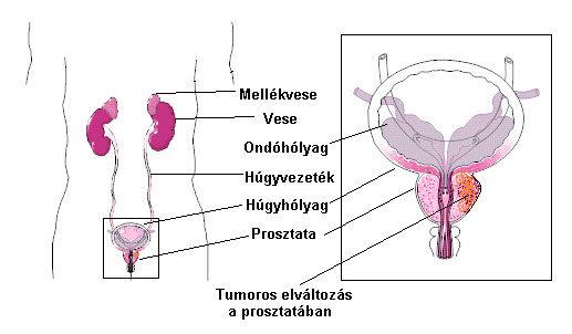 prosztatarák tünetei és kezelése jó gyógyszerek a gyermekek férgei számára
