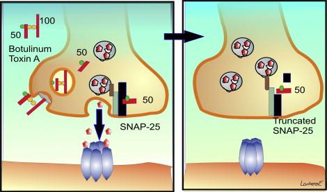 botulinum toxin ára humán papillomavírus hím vs nőstény