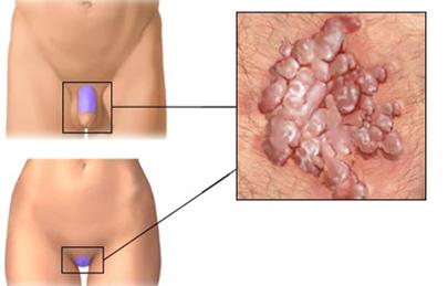genitális szemölcsök férfiaknál okai és tünetei