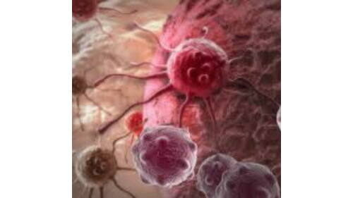 a hólyag rosszindulatú daganata