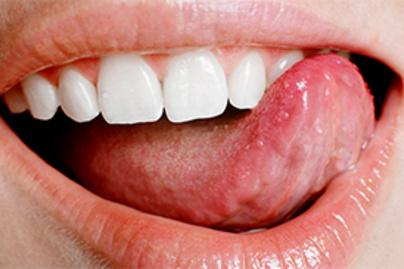papillomavírus nyelv ember