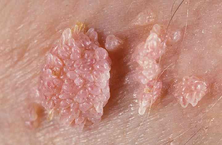 kako se leci hpv kod muskaraca humán papillomhpv humán papillomavírus rákot okozhat