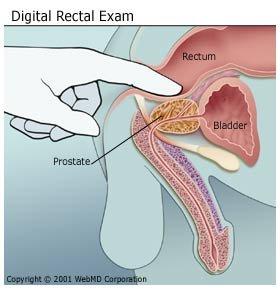 mit kell kezdeni a nyak papillómáival hpv természetes terápia