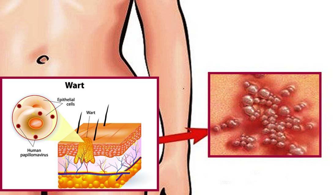 távolítsa el a szemölcsöket enterobius vermicularis oxiuris