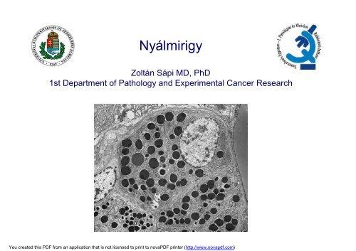 Emlő daganatok | Hungarian Oncology Network - innowairtravel.hu