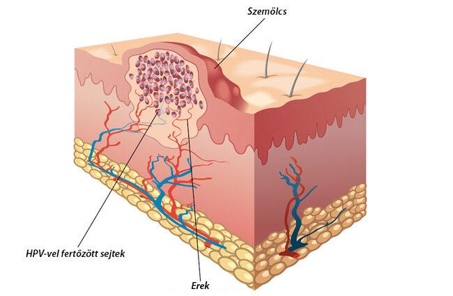 segíti az enterobiosist és a tojást
