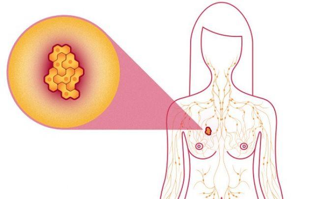Mi a daganat, tumor, rák?
