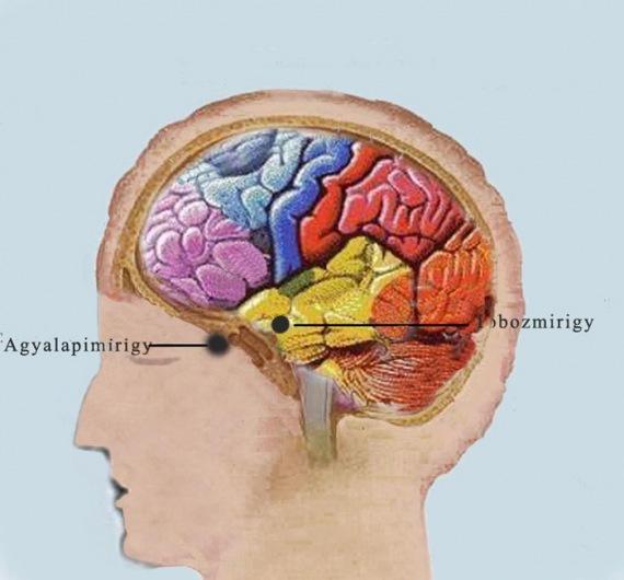 emberi papillomavírus közönséges szemölcsök férgeknek fáj