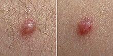papilloma vírus 81 milyen veszélyt jelent a féreg az emberre?