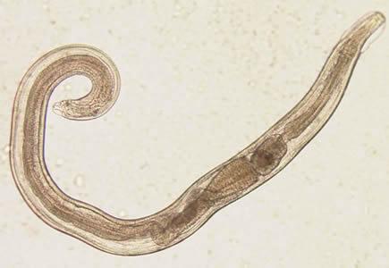 enterobius vermicularis cdc életciklus vastagbélrák és hátfájás