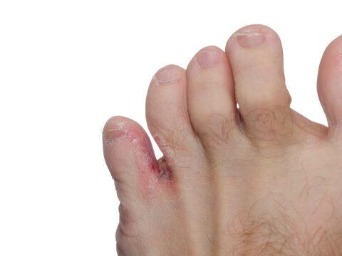 Zsibbad, ég, tompán fáj a lába? Ez lehet mögötte - EgészségKalauz