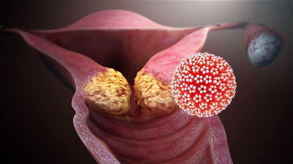 az emberi papillomavírus veszélyességi szintje