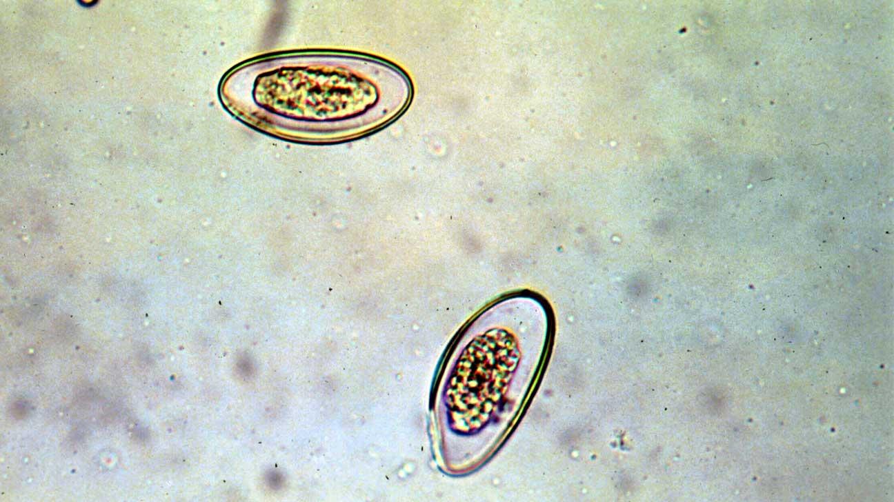 a féreg pinworm