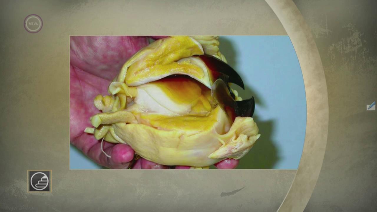 a pinwormok biológiai körforgása helmint fertőzés és rák