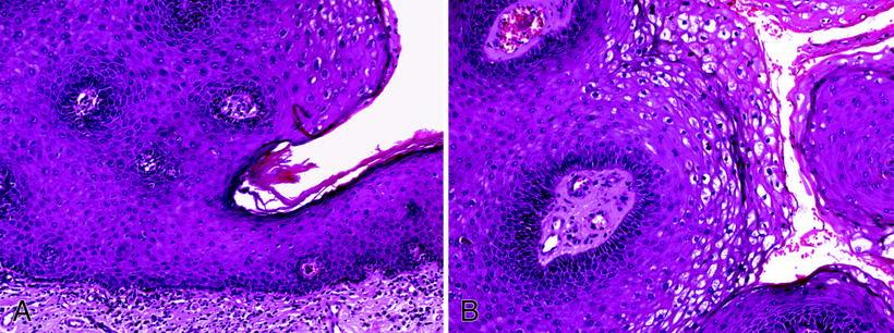 urethralis condyloma férfiaknál féreghajtó gyógyszerek újszülöttek számára