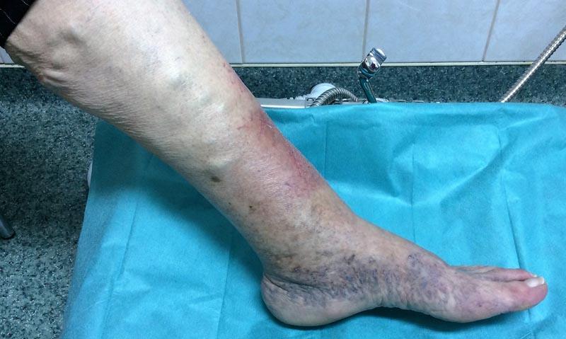krém a törött vénákra a lábakon a legjobb féreghajtó szerek a gyermekek számára