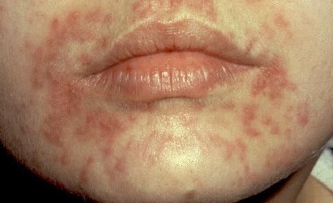 Gyermekek helmintikus fertőzésének megelőzése