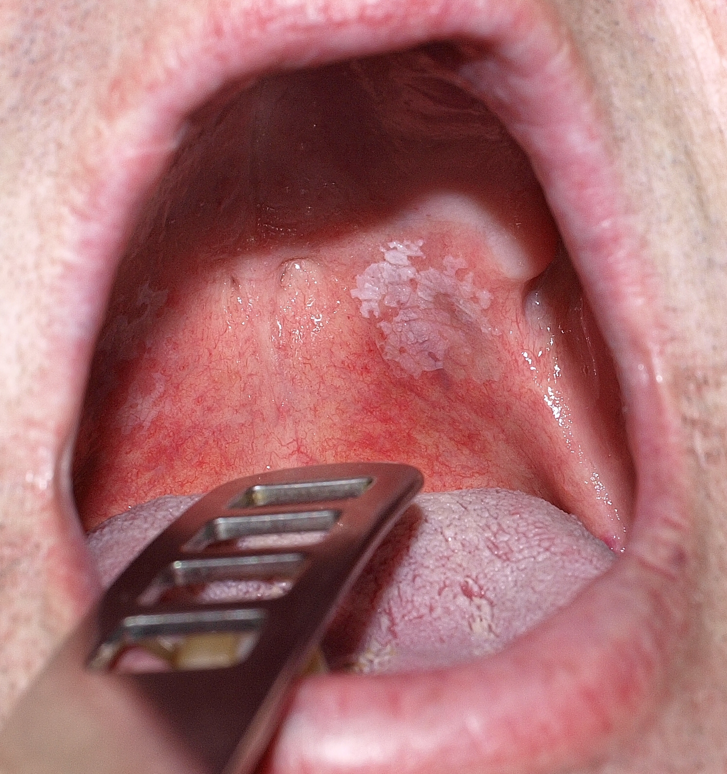 emberi papillomavírusra vonatkozó információk minden parazita tabletta ember számára