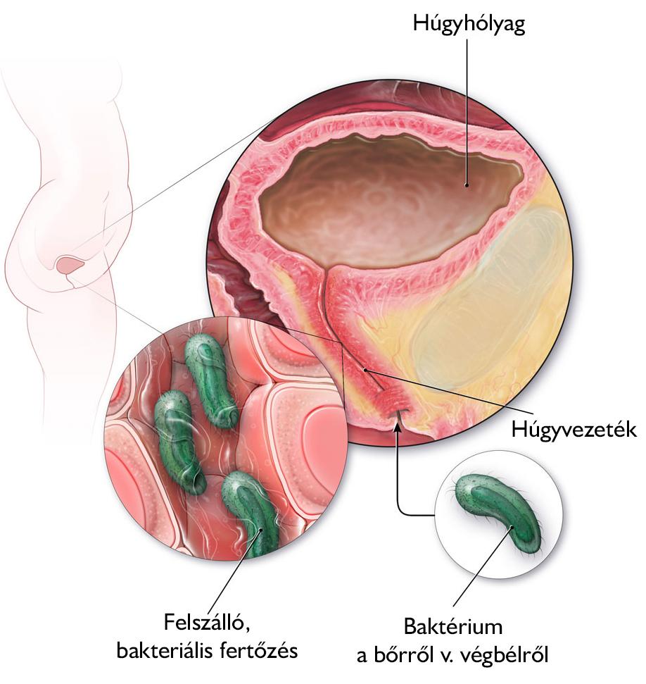baktériumok a gyermekek vizeletében hogyan kezeljük az emberi papillomavírust nőknél