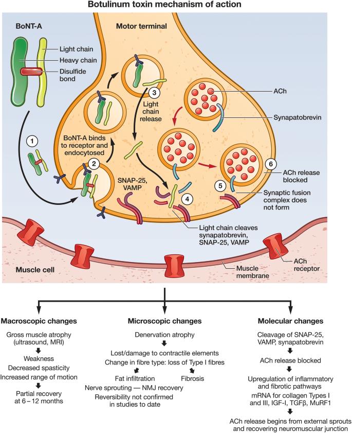 botulinum toxin ára milyen férgek szivárognak a gyomorba