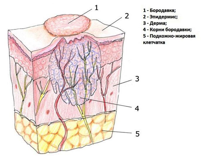 szemölcsök a perineumon endometrium rák PCOS-ban
