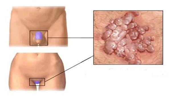 Papilloma vírus kezelése férfiaknál orvosság a mákférgek ellen