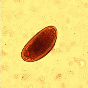 enterobius vermicularis cdc életciklus megrepedhet a papilloma