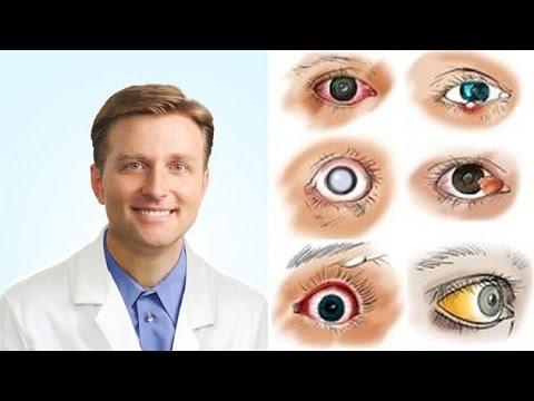 férgek a szem kezelés mögött gél spray a nemi szemölcsökhöz