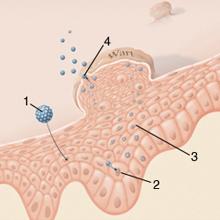 morajló férgek a gyomorban