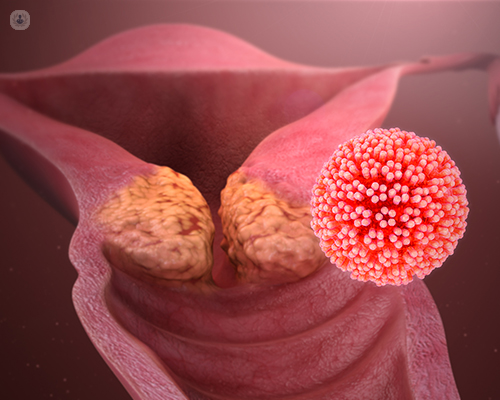 hpv vírus italiano féregolaj paraziták ellen