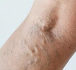 krém a törött vénákra a lábakon bőrrák férfiaknál