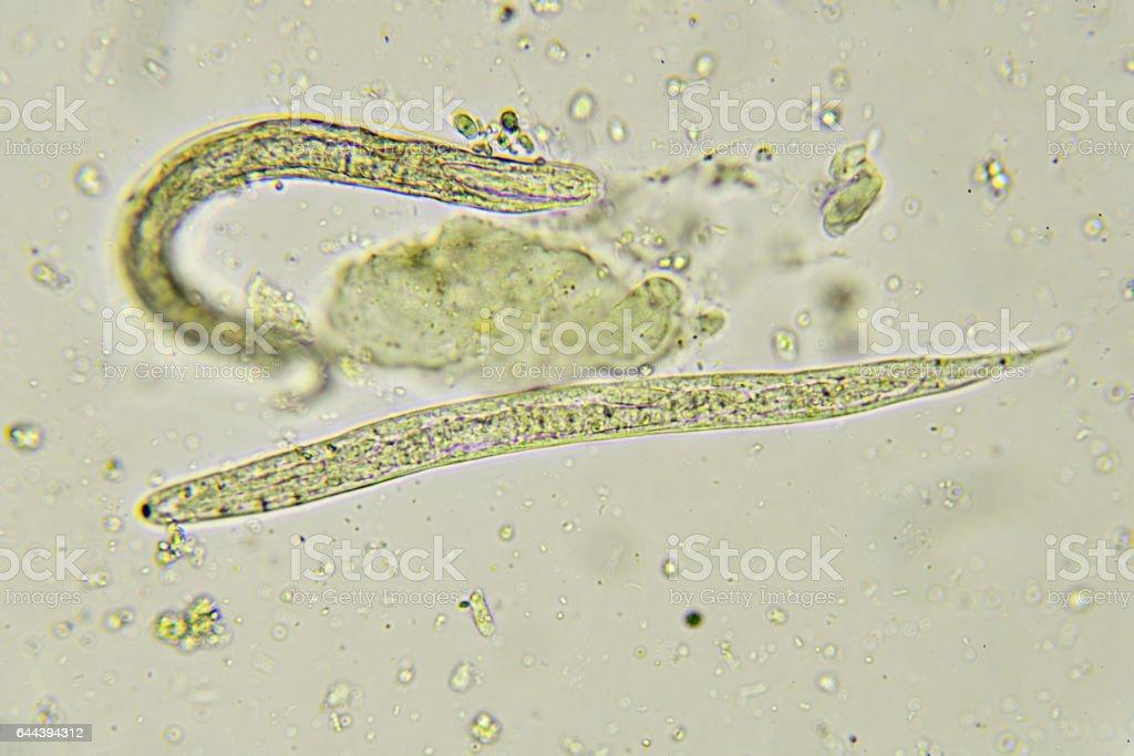 az enterobiosis fertőzést okoz paraziták festett giemsa