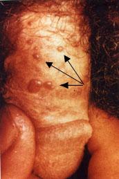hpv impfung kockázat schistosomiasis uk