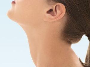 nyaki rák kezelése juvenilis intraductalis papilloma