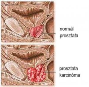 prostata rosszindulatú daganata
