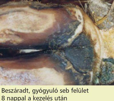 hónalj papillómák intraductalis papillómák terhesség alatt