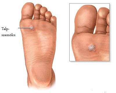 szemölcs vírus baktériumok endofitikus condyloma