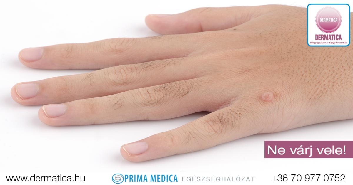 szemölcs vírus kezét humán 45. típusú papillomavírus