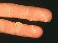 enterobiosis gyermekeknél és a kezelés megelőzése kezelés vörös papillómával