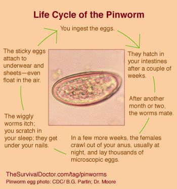 tinizol a pinwormok ellen