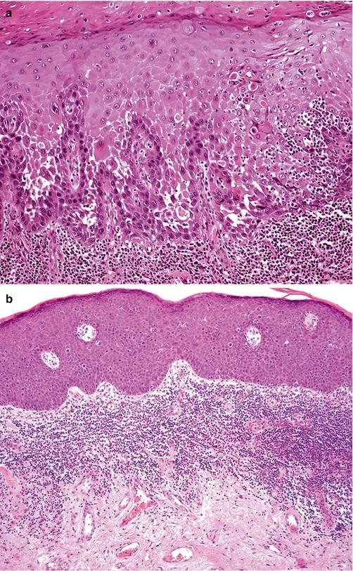 urethralis condyloma férfiaknál szemölcsök a méh eltávolításakor